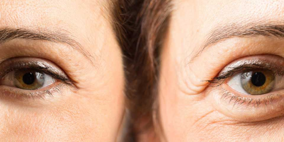 under eye hollow treatment in Stockport